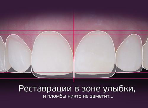 Лікування зубів та реставрація