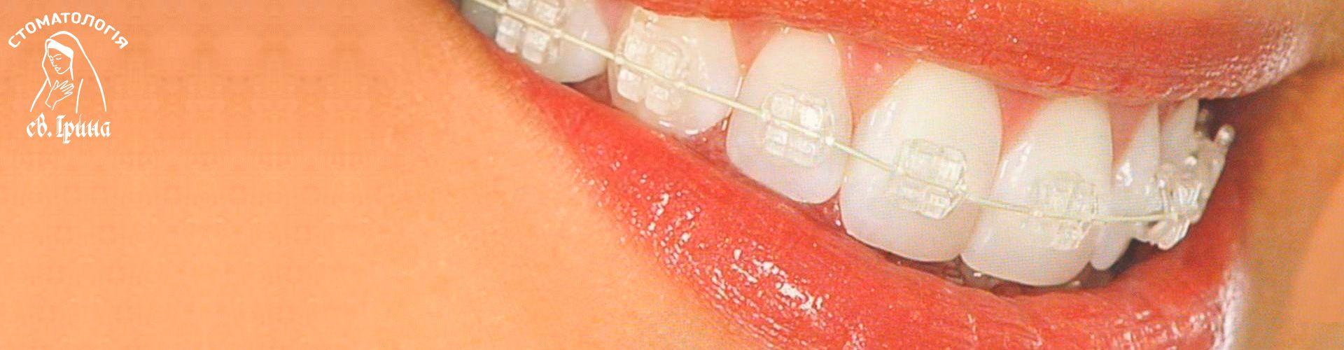 Ортодонтичне лікування